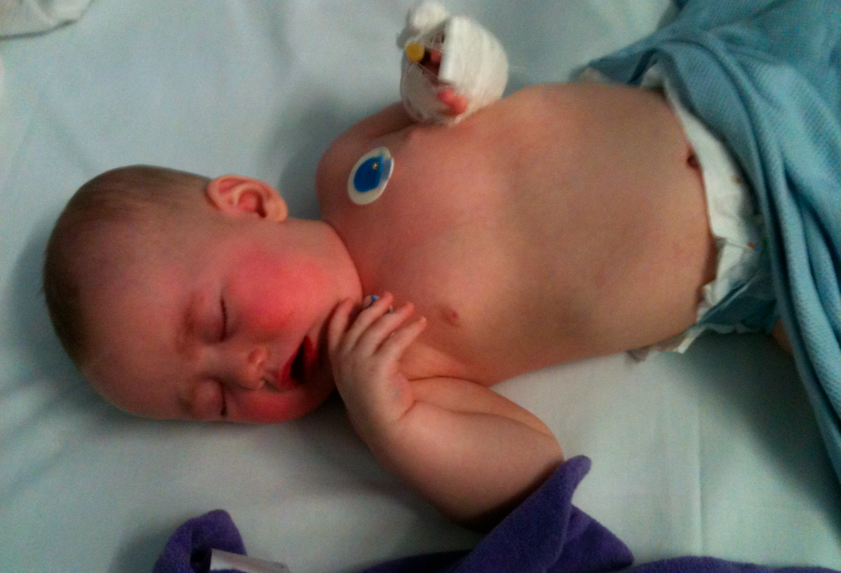 breastfed and poorly
